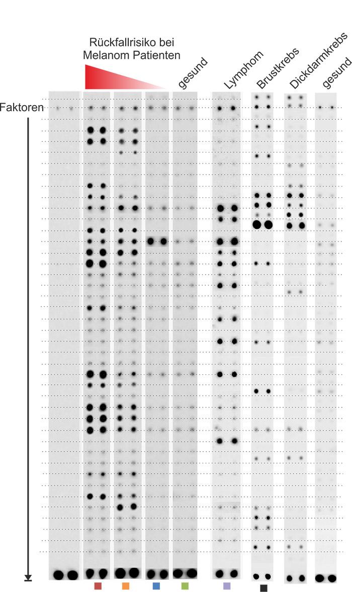 Testergebnisse eines Bluttests