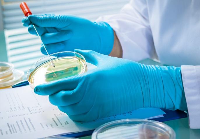 Agarplatte besiedelt mit Bakterien im Labor.